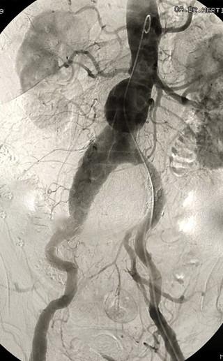 Bauchaortenaneurysma